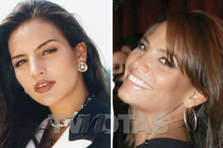 Fabiola Campomanes Before and After